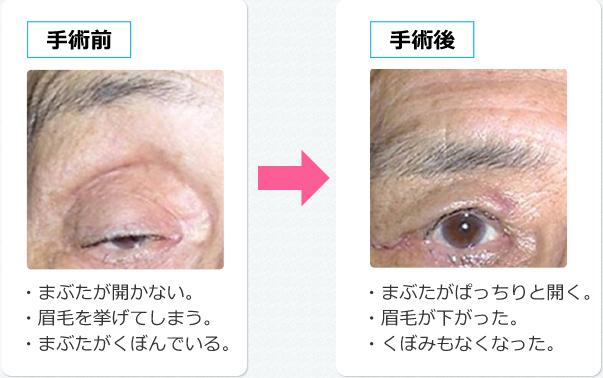 眼瞼 下垂 と は