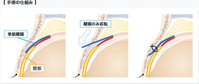 手術の仕組み2