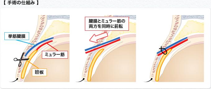 手術の仕組み4