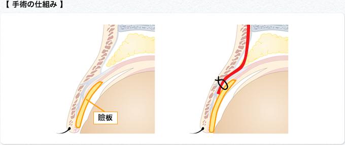 手術の仕組み5