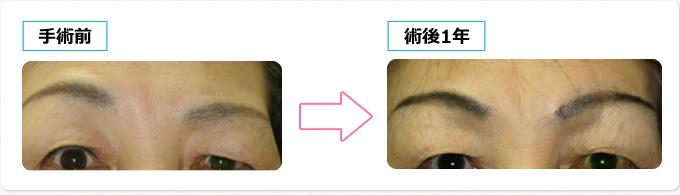 眉毛固定、眉毛下皮膚切除
