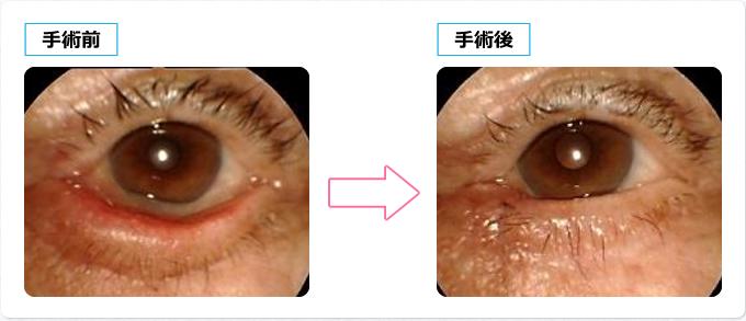 水平方向の眼瞼短縮術