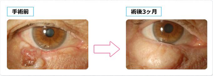 全層切除と眼輪筋皮弁と口蓋粘膜移植