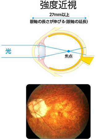 強度近視の場合の眼軸の様子