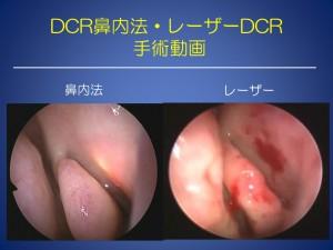 レーザーDCR 涙道学会 2108.7.14
